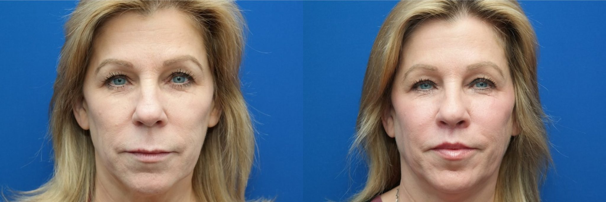 A before and after image set of a woman that underwent a lip lift